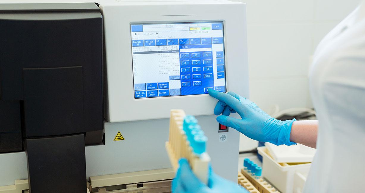 Re-engineering of blood coagulation analyzer resulting in 35% BOM cost reduction